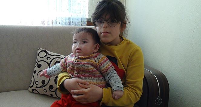 Doğuştan burunları, solunum yolları bulunmayan küçük kız kardeşlerin zorlu hayatı